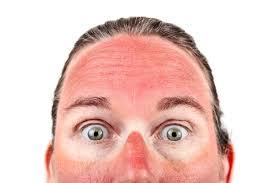 How to Relieve Sunburn - AquaViews